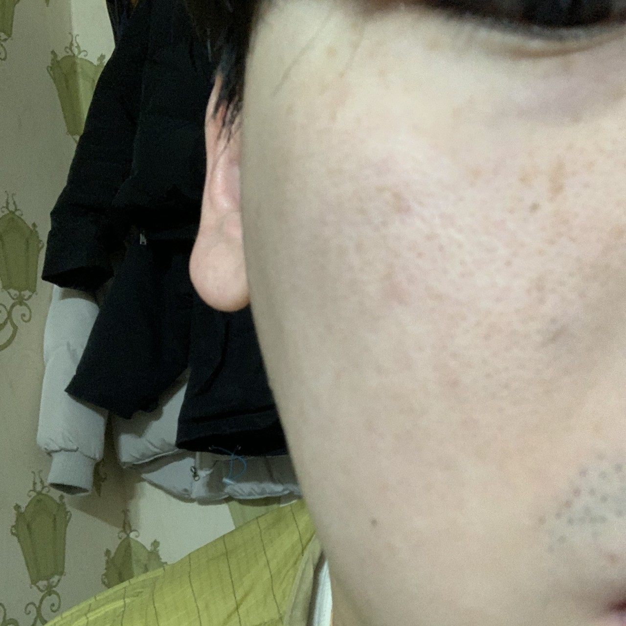 after 이미지